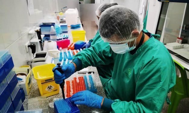 Santa Cruz: Laboratorio de la Gobernación inicia pruebas masivas de antígeno nasal